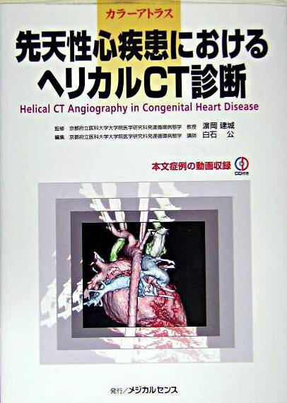 先天性心疾患におけるヘリカルCT診断