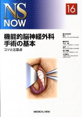 機能的脳神経外科手術の基本 : コツと注意点 <NS now no.16>