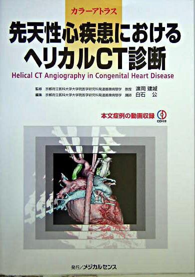 先天性心疾患におけるヘリカルCT診断 : カラーアトラス